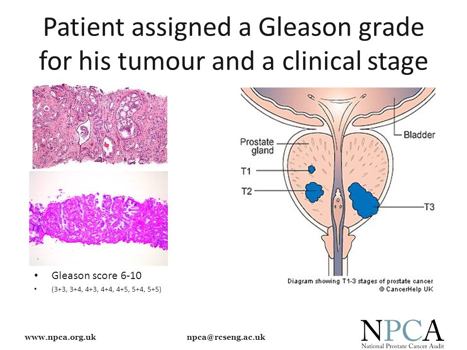 www.npca.org.uk npca@rcseng.ac.uk Patient assigned a Gleason grade for his tumour and a clinical stage Gleason score 6-10 (3+3, 3+4, 4+3, 4+4, 4+5, 5+