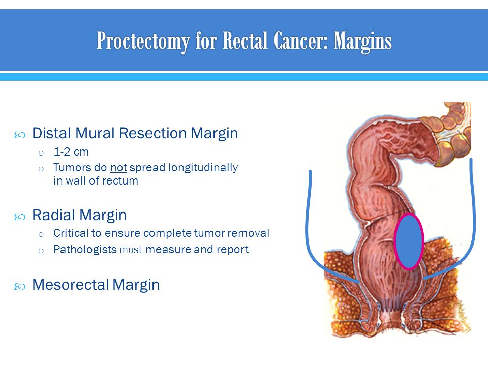  Distal Mural Resection Margin o 1-2 cm o Tumors do not spread longitudinally in wall of rectum  Radial Margin o Critical to ensure complete tumor r