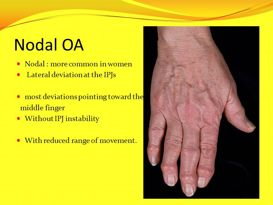 Nodal OA Nodal : more common in women Lateral deviation at the IPJs most deviations pointing toward the middle finger Without IPJ instability With red