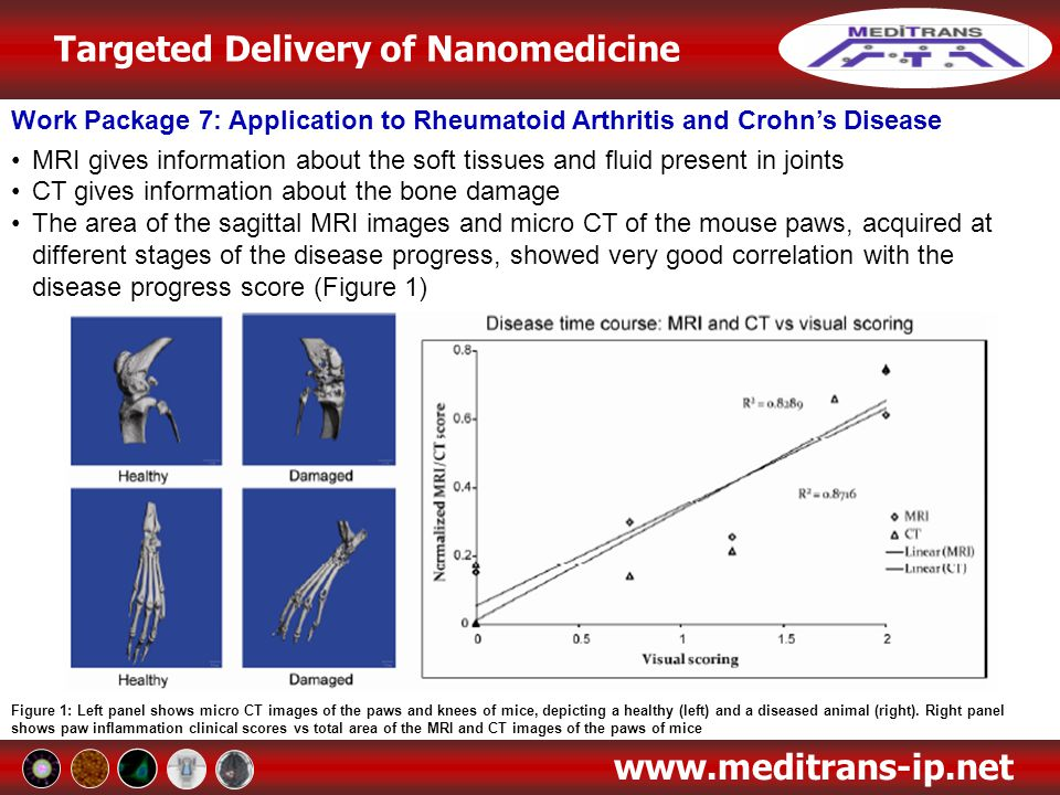 Targeted Delivery of Nanomedicine www.meditrans-ip.net Work Package 7: Application to Rheumatoid Arthritis and Crohn's Disease MRI gives information a