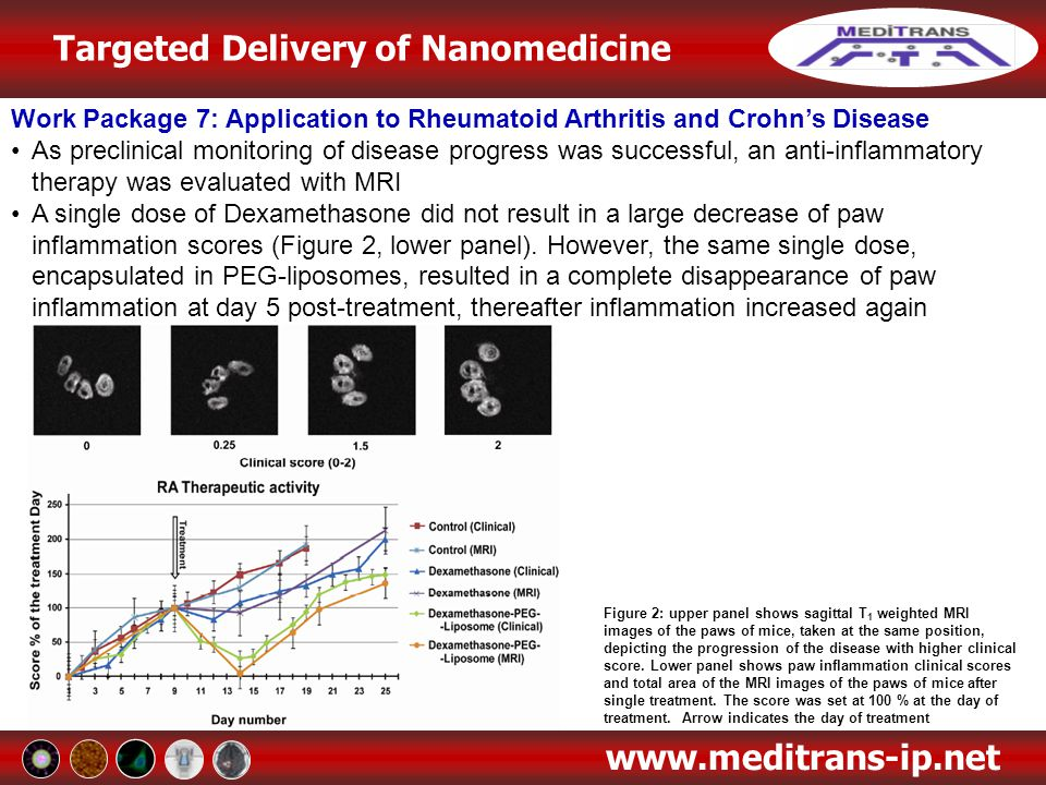 Targeted Delivery of Nanomedicine www.meditrans-ip.net Work Package 7: Application to Rheumatoid Arthritis and Crohn's Disease As preclinical monitori