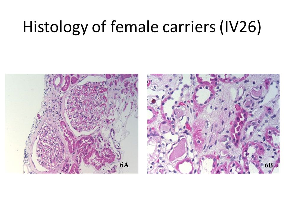 Histology of female carriers (IV26) 6A 6B