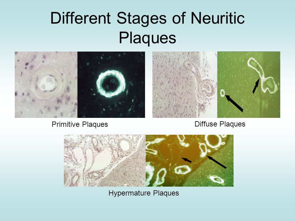 Different Stages of Neuritic Plaques Primitive Plaques Diffuse Plaques Hypermature Plaques