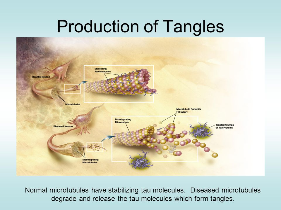 Production of Tangles Normal microtubules have stabilizing tau molecules.