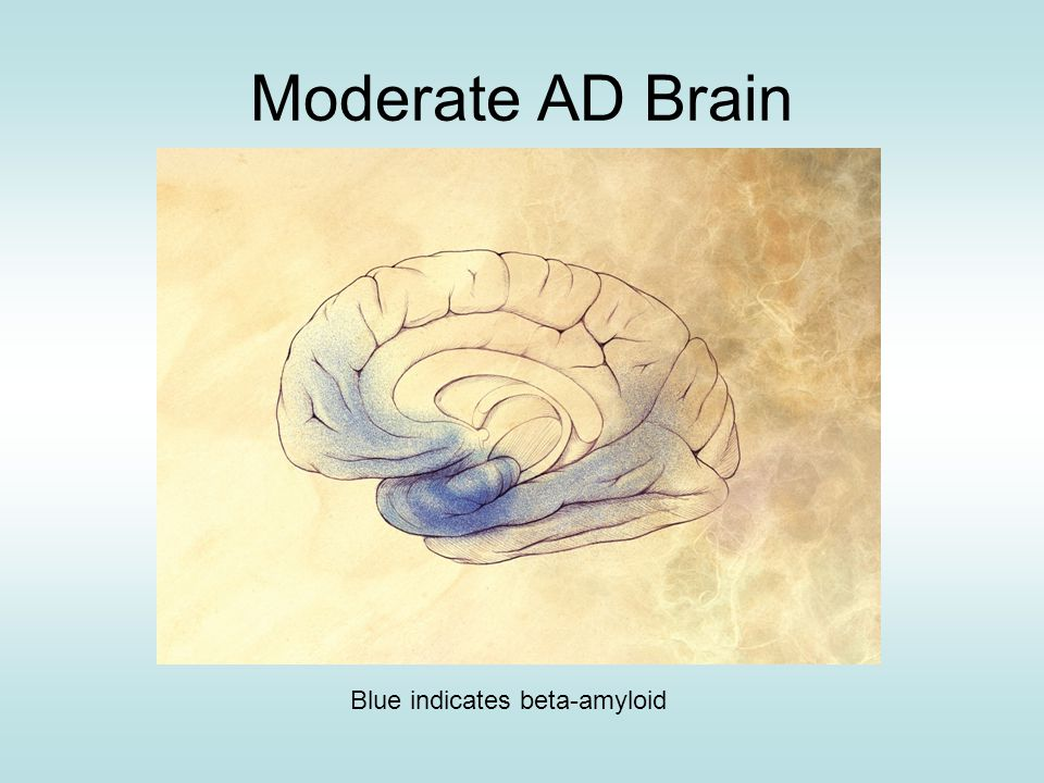 Moderate AD Brain Blue indicates beta-amyloid