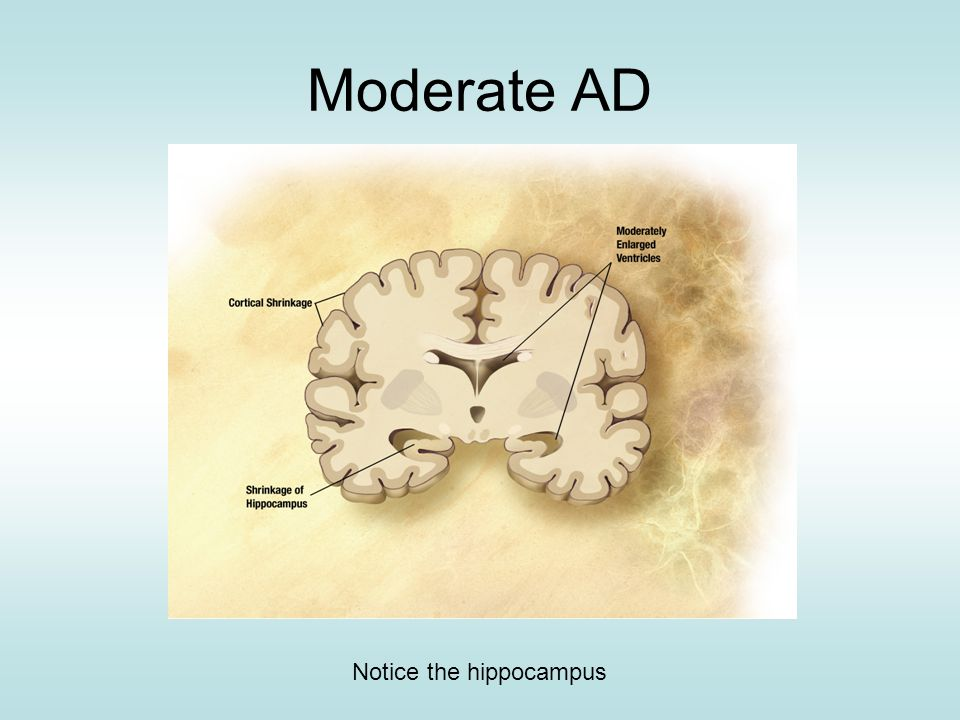 Moderate AD Notice the hippocampus