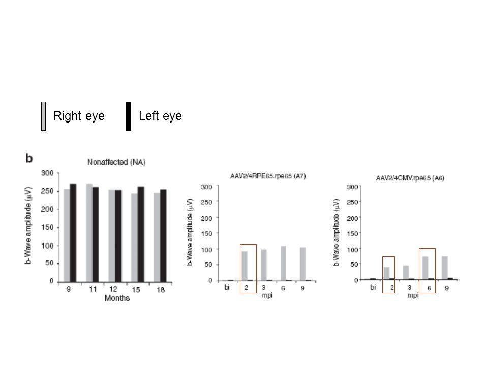 Left eyeRight eye