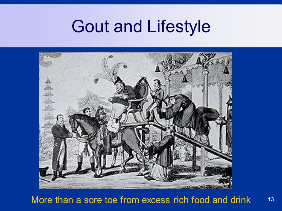 13 Gout and Lifestyle More than a sore toe from excess rich food and drink