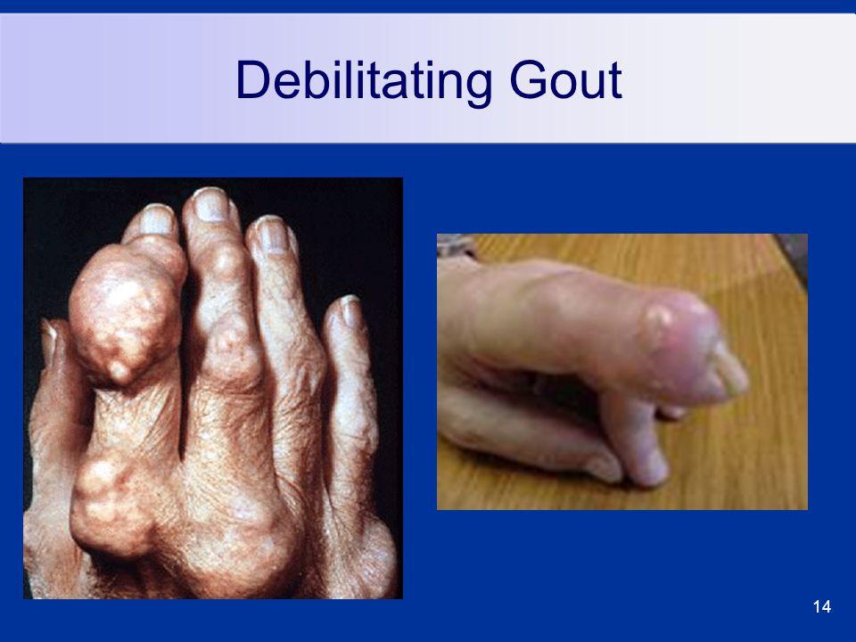 14 Debilitating Gout
