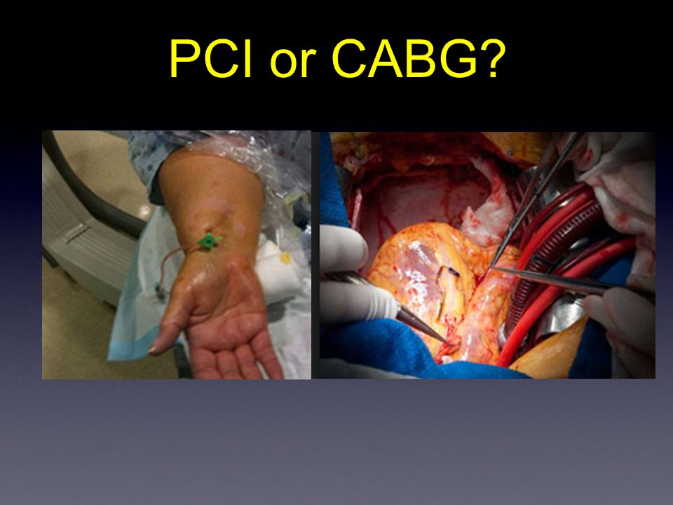 PCI or CABG?