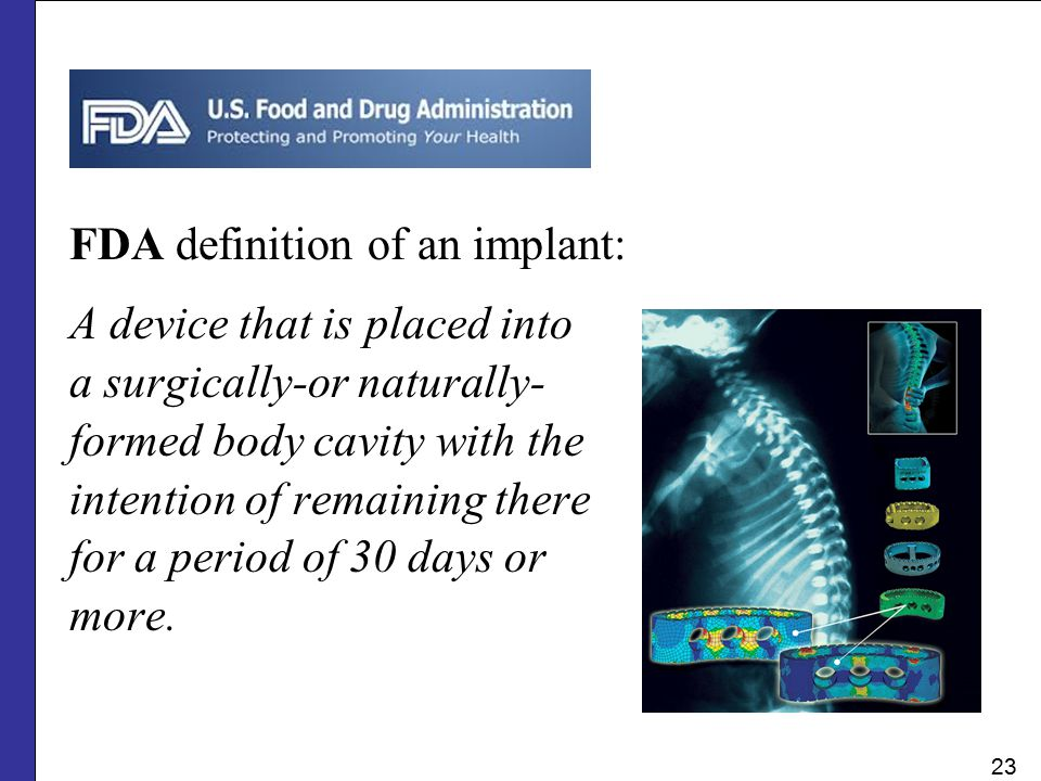 FDA definition of an implant: A device that is placed into a surgically-or naturally- formed body cavity with the intention of remaining there for a p