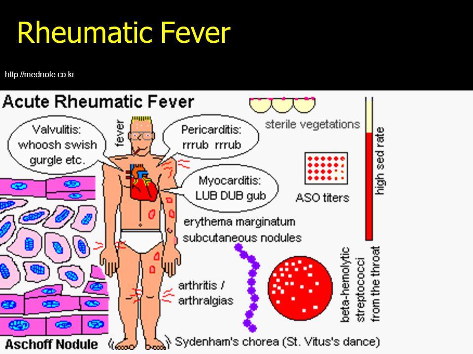 Rheumatic Fever http://mednote.co.kr