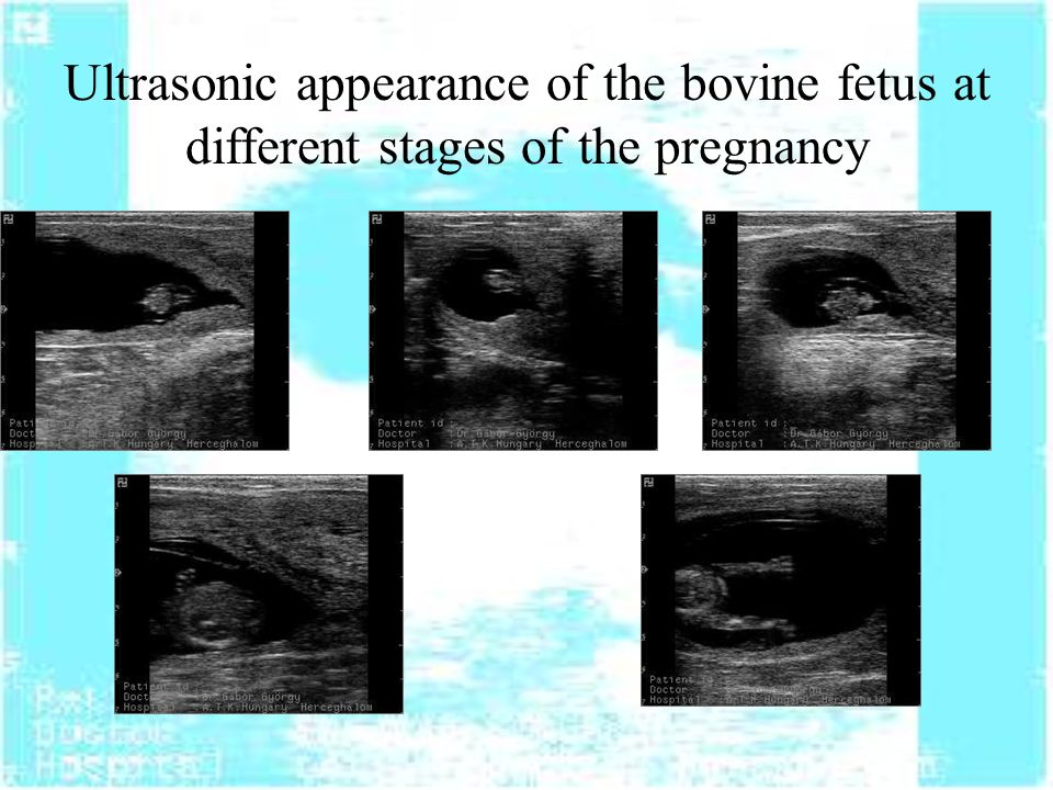 Ultrasonic appearance of the bovine fetus at different stages of the pregnancy