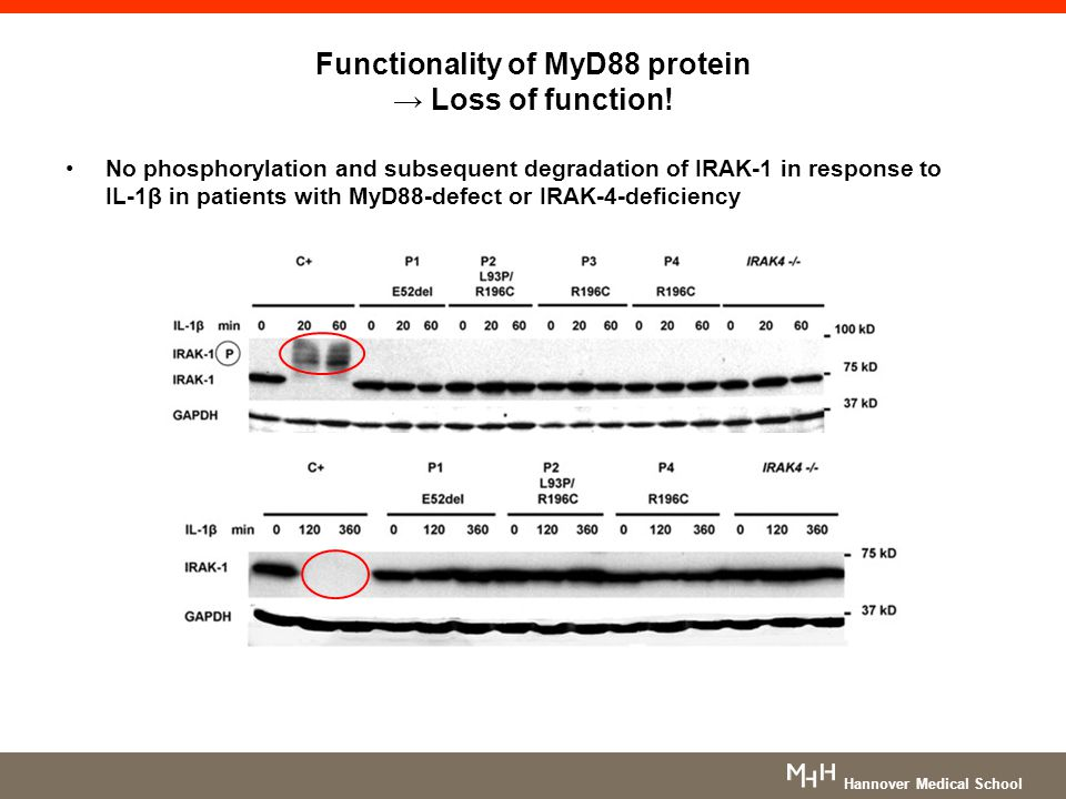Functionality of MyD88 protein → Loss of function! No phosphorylation and subsequent degradation of IRAK-1 in response to IL-1β in patients with MyD88