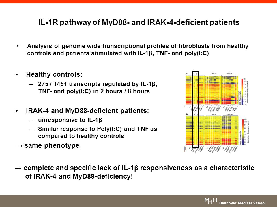 IL-1R pathway of MyD88- and IRAK-4-deficient patients Analysis of genome wide transcriptional profiles of fibroblasts from healthy controls and patien