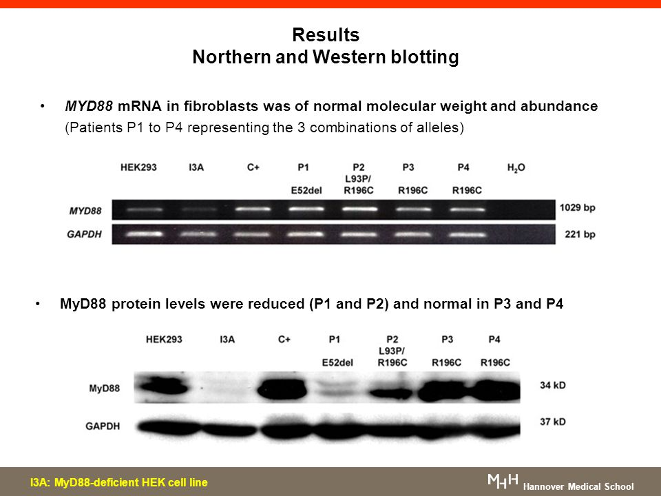 Results Northern and Western blotting Hannover Medical School MYD88 mRNA in fibroblasts was of normal molecular weight and abundance (Patients P1 to P