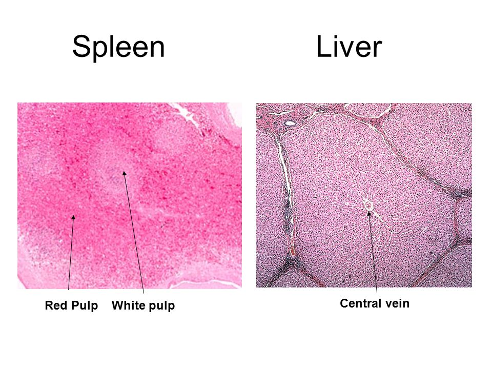 Spleen Liver Red Pulp White pulp Central vein