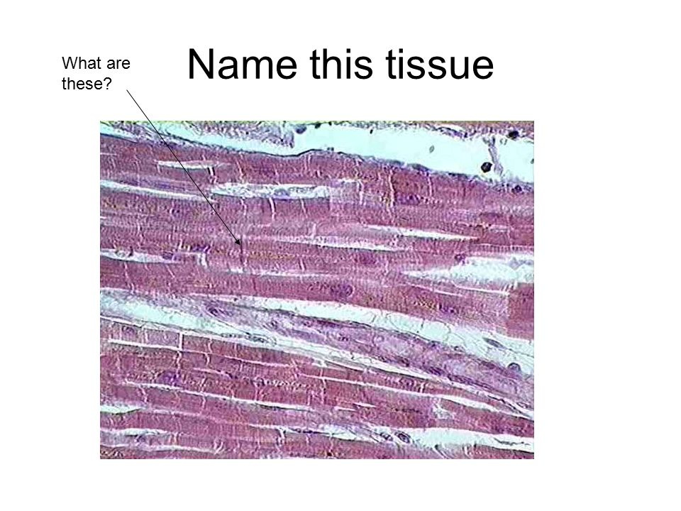 Name this tissue What are these
