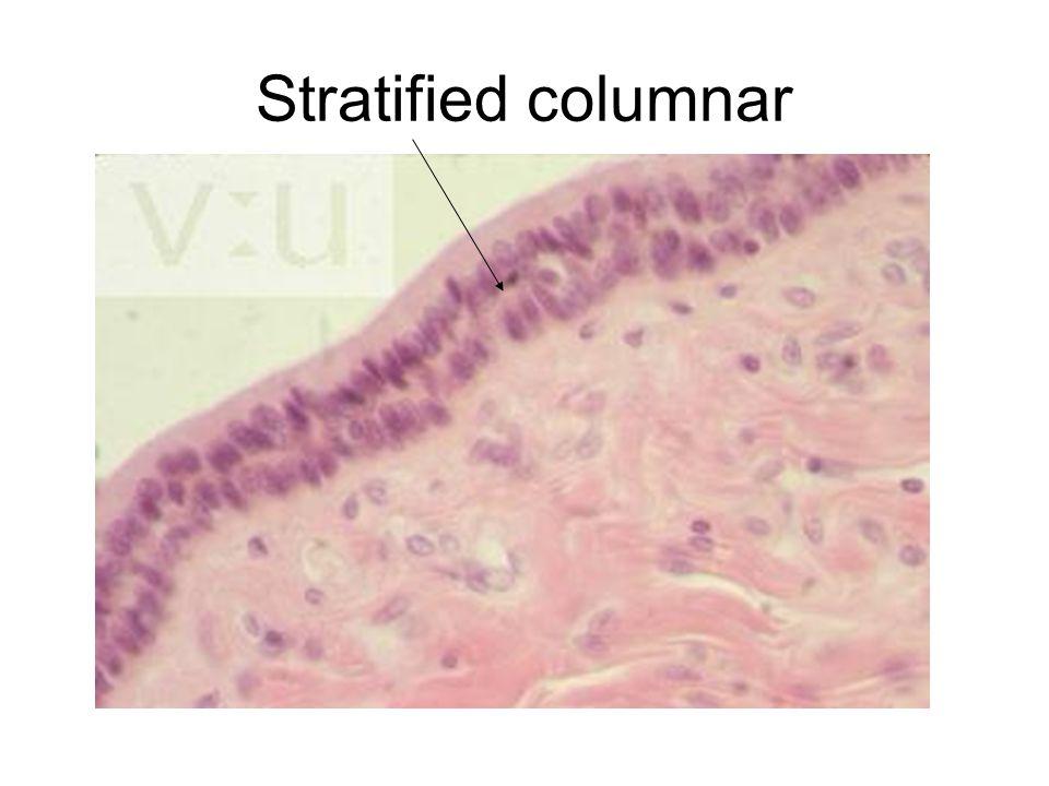 Stratified columnar