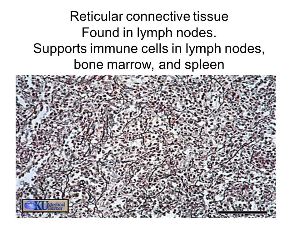 Reticular connective tissue Found in lymph nodes. Supports immune cells in lymph nodes, bone marrow, and spleen