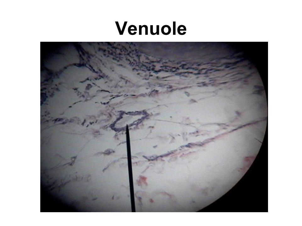 Venuole