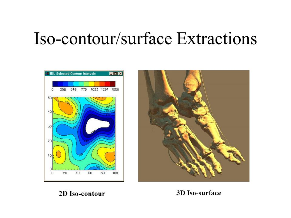Iso-contour (0) Remember bi-linear interpolation p2 p3 p0 p1 P =.