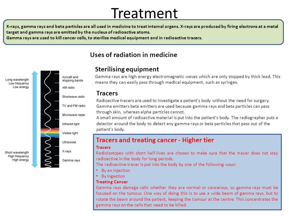 Treatment X-rays, gamma rays and beta particles are all used in medicine to treat internal organs.