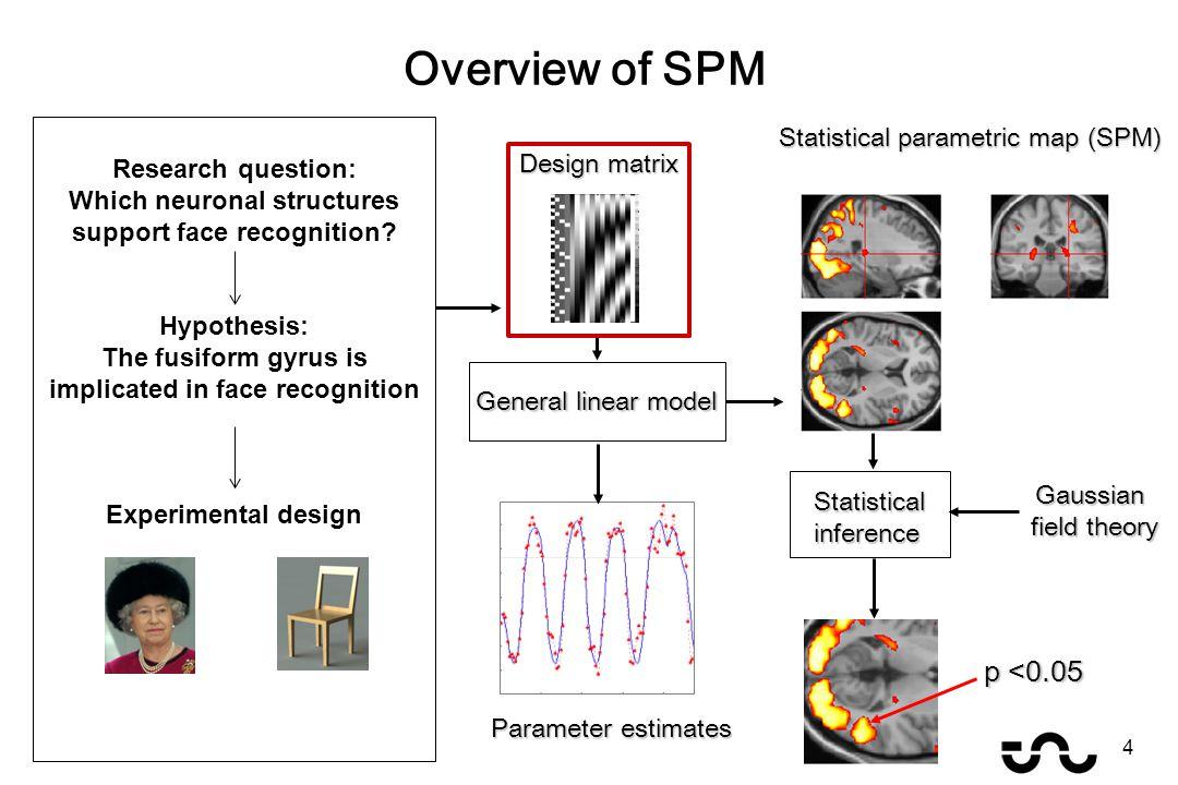 Overview of SPM General linear model Statistical parametric map (SPM) Parameter estimates Design matrix Gaussian field theory p <0.05 Statisticalinfer