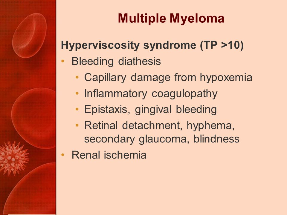 Multiple Myeloma Hyperviscosity syndrome (TP >10) Bleeding diathesis Capillary damage from hypoxemia Inflammatory coagulopathy Epistaxis, gingival bleeding Retinal detachment, hyphema, secondary glaucoma, blindness Renal ischemia