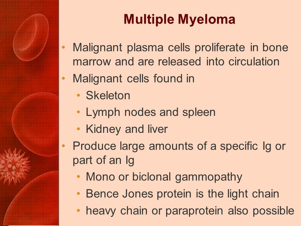 Multiple Myeloma Malignant plasma cells proliferate in bone marrow and are released into circulation Malignant cells found in Skeleton Lymph nodes and spleen Kidney and liver Produce large amounts of a specific Ig or part of an Ig Mono or biclonal gammopathy Bence Jones protein is the light chain heavy chain or paraprotein also possible