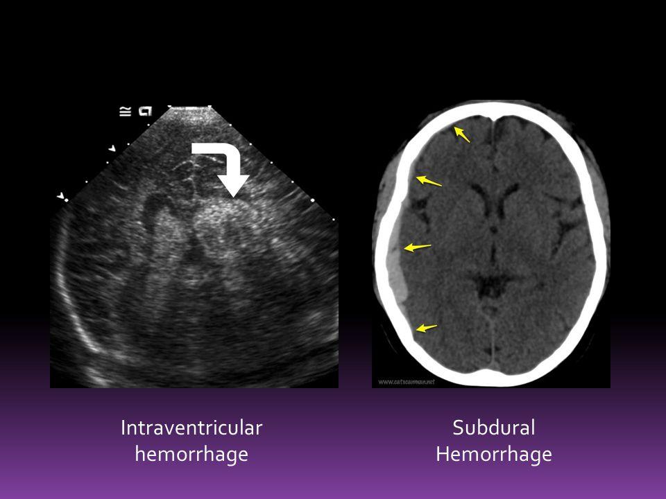 Intraventricular hemorrhage Subdural Hemorrhage