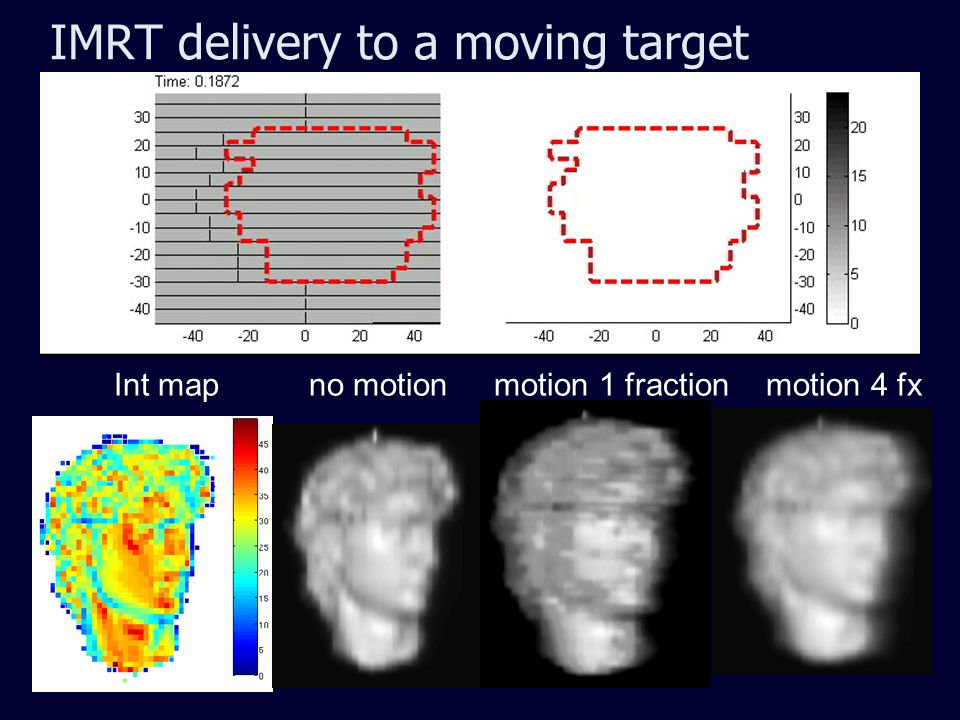 IMRT delivery to a moving target Int map no motion motion 1 fraction motion 4 fx