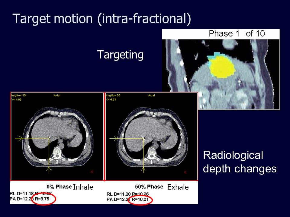 Target motion (intra-fractional) Targeting Radiological depth changes InhaleExhale