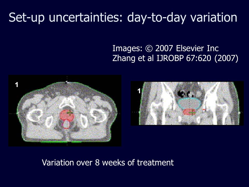 Set-up uncertainties: day-to-day variation Images: © 2007 Elsevier Inc Zhang et al IJROBP 67:620 (2007) Variation over 8 weeks of treatment