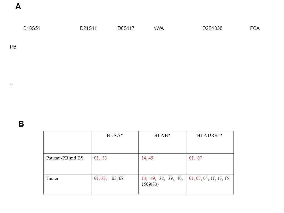 HLA DRB1*HLA B*HLA A* 01, 0714, 4901, 33Patient -PB and BS 01, 07, 04, 11, 13, 1514, 49, 38, 39, 40, 1509(70) 01, 33, 02, 68Tumor A B D18S51 D21S11 D8S117 vWA D2S1338 FGA PB T