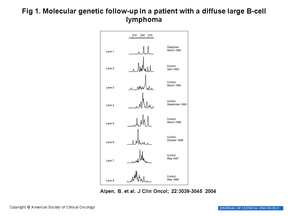 Alpen, B. et al. J Clin Oncol; 22:3039-3045 2004 Fig 1. Molecular genetic follow-up in a patient with a diffuse large B-cell lymphoma