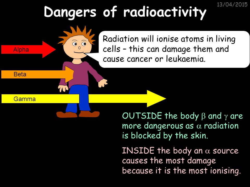 13/04/2015 Uses of Radioactivity 4 - Treating Cancer High energy gamma radiation can be used to kill cancerous cells. However, care must be taken in o
