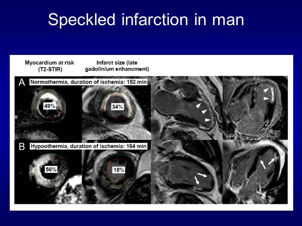 Speckled infarction in man