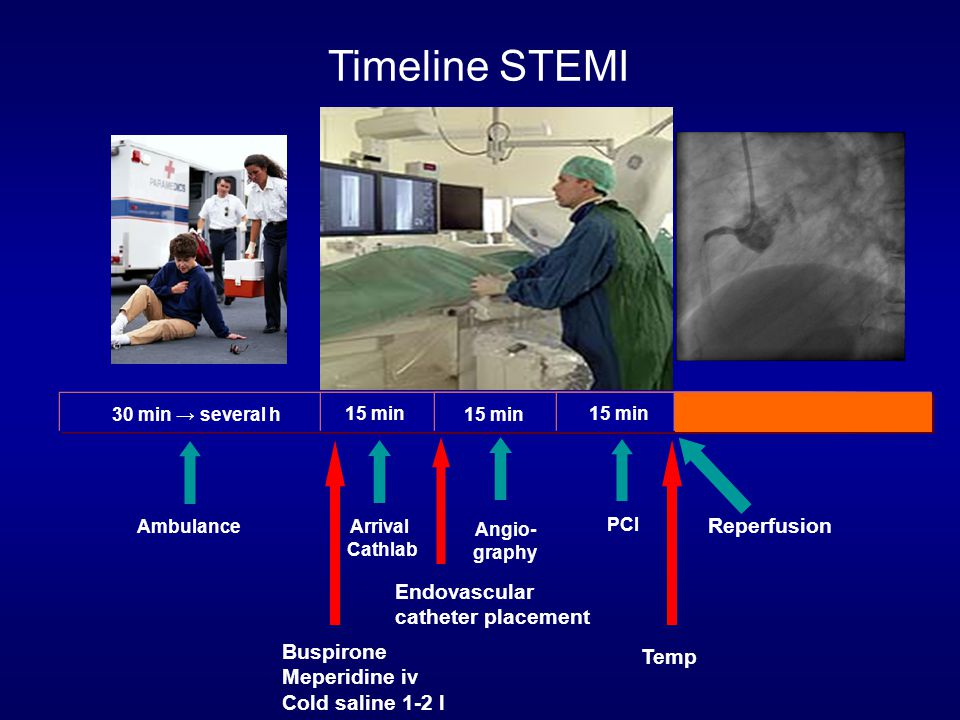Timeline STEMI Ambulance Reperfusion Arrival Cathlab 30 min → several h 15 min Angio- graphy 15 min PCI Buspirone Meperidine iv Cold saline 1-2 l Endovascular catheter placement Temp