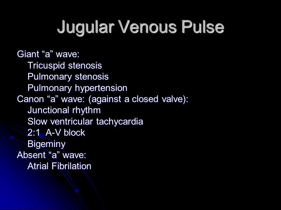 Jugular Venous Pulse Giant a wave: Tricuspid stenosis Pulmonary stenosis Pulmonary hypertension Canon a wave: (against a closed valve): Junctional rhythm Slow ventricular tachycardia 2:1 A-V block Bigeminy Absent a wave: Atrial Fibrilation