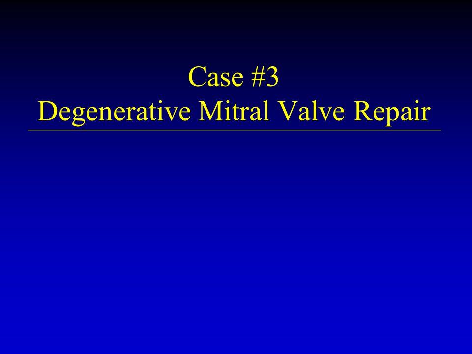 Case #3 Degenerative Mitral Valve Repair