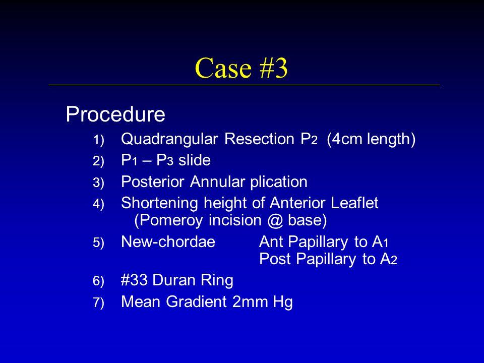 Case #3 Procedure 1) 1) Quadrangular Resection P 2 (4cm length) 2) 2) P 1 – P 3 slide 3) 3) Posterior Annular plication 4) 4) Shortening height of Ant