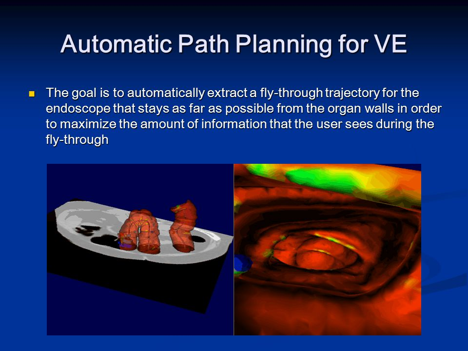 Automatic Path Planning for VE The goal is to automatically extract a fly-through trajectory for the endoscope that stays as far as possible from the