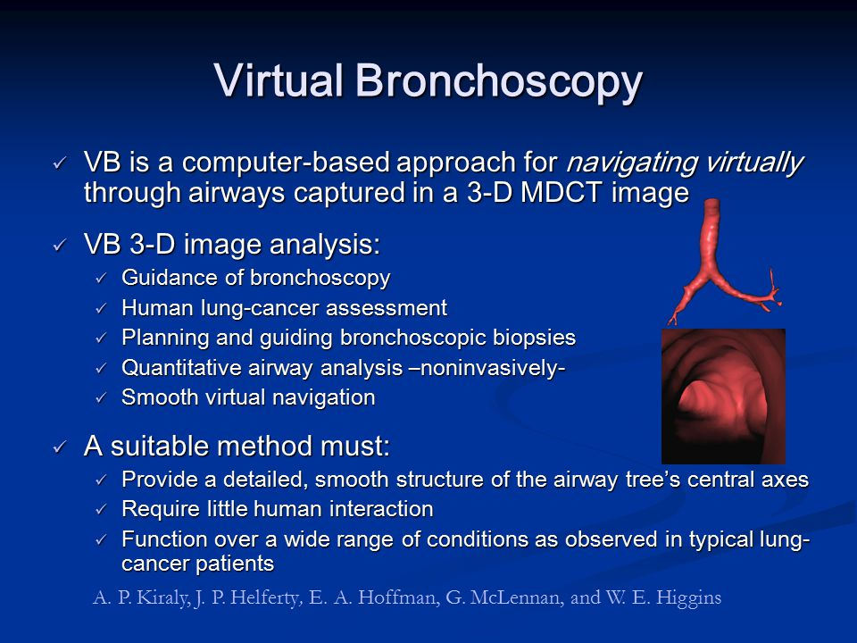 Virtual Bronchoscopy VB is a computer-based approach for navigating virtually through airways captured in a 3-D MDCT image VB is a computer-based appr
