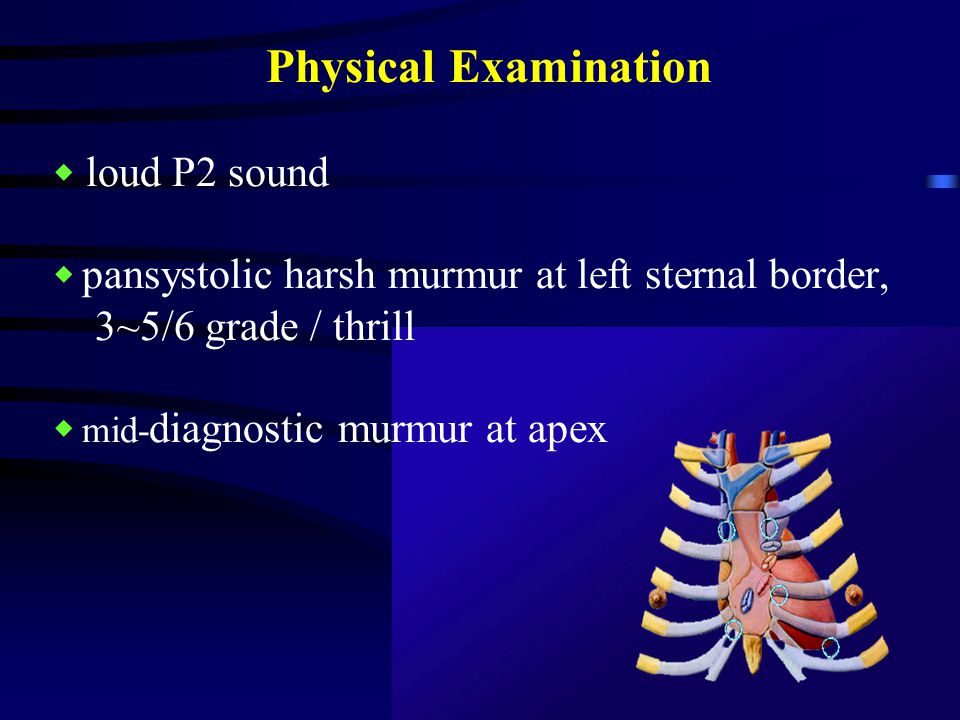 Physical Examination ◆ loud P2 sound ◆ pansystolic harsh murmur at left sternal border, 3~5/6 grade / thrill ◆ mid- diagnostic murmur at apex