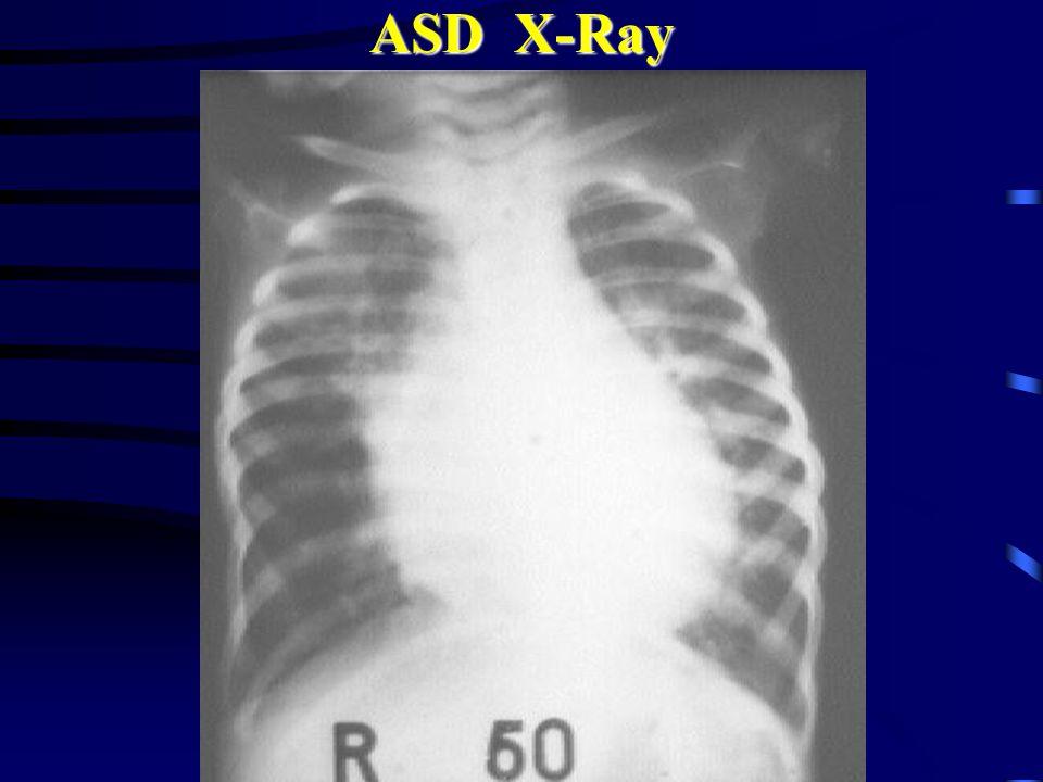 ASD X-Ray