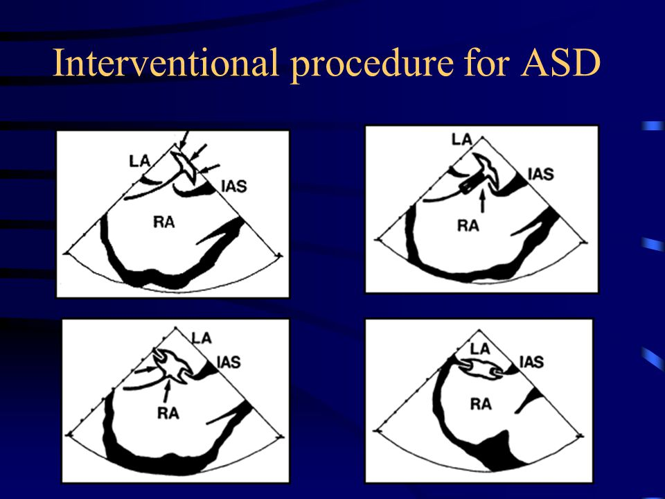 Interventional procedure for ASD