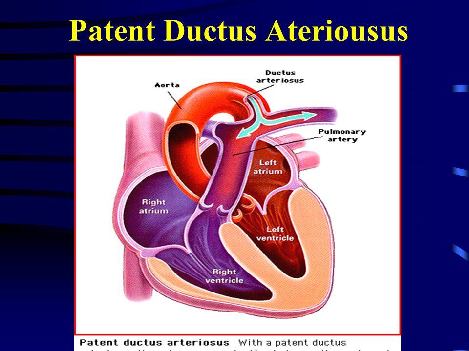 Patent Ductus Ateriousus