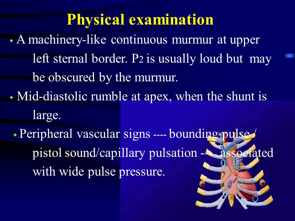 Physical examination ◆ A machinery-like continuous murmur at upper left sternal border.