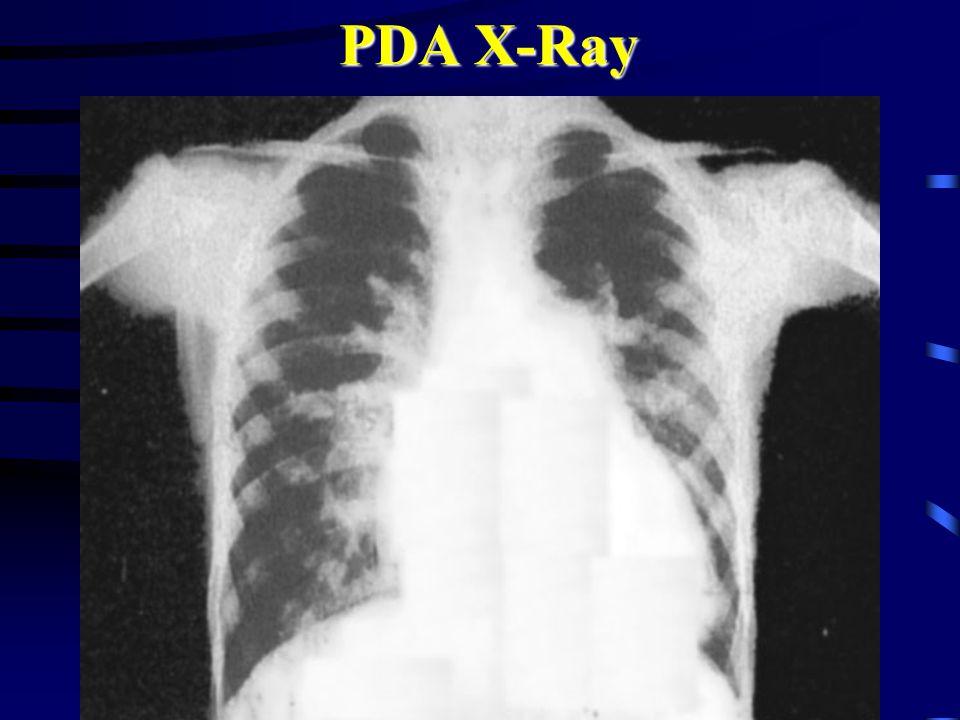 PDA X-Ray